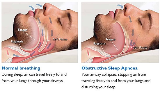 Obstructive Sleep Apnea (OSA) Symptoms